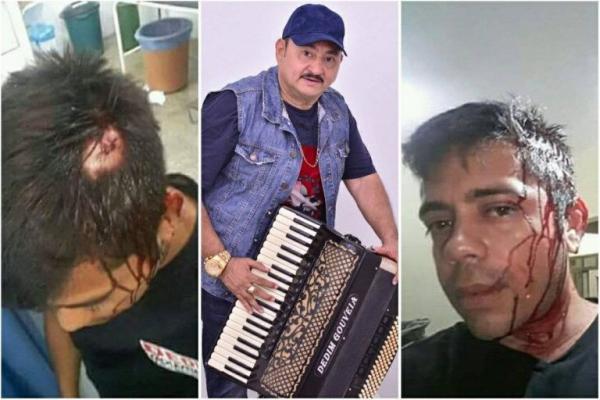Sanfoneiro acusa Dedim Gouveia de agressão