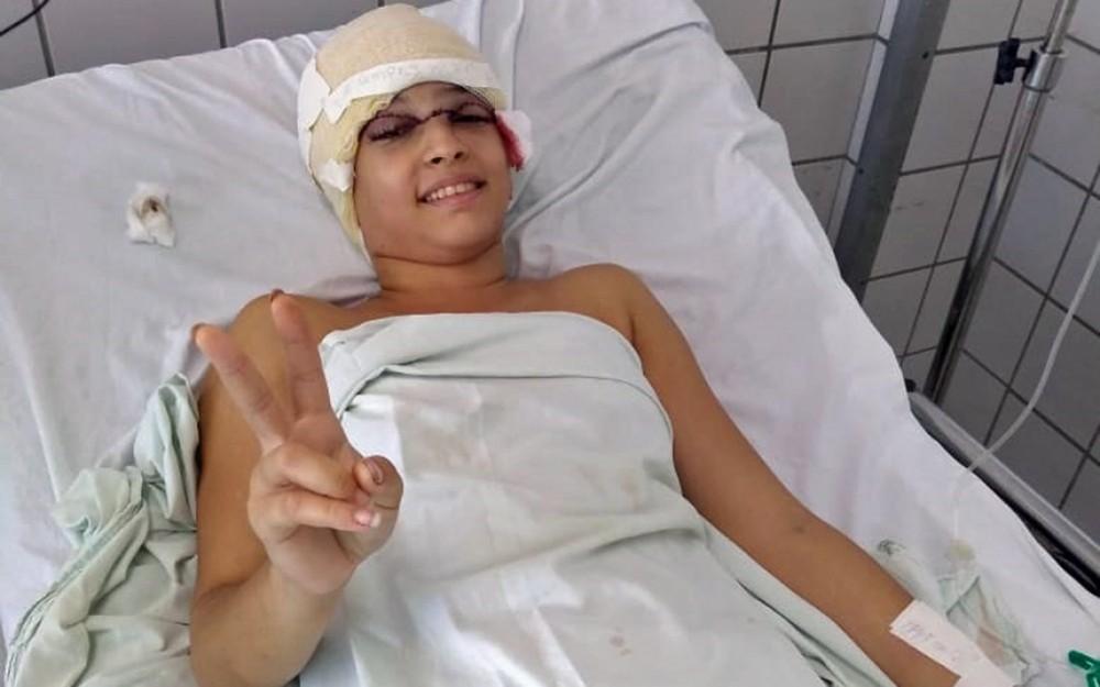 Em nova cirurgia, médicos retiram implante de jovem que teve couro cabeludo arrancado em kart