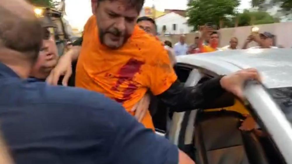 Cid Gomes é atingido por tiro em Sobral