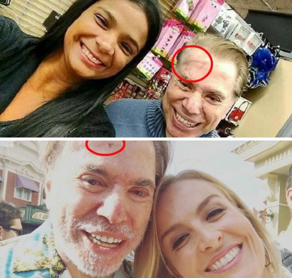 Câncer: apresentador Sílvio Santos retira tumor na testa; foto